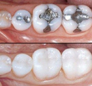 amalgam fillings replaced with composite